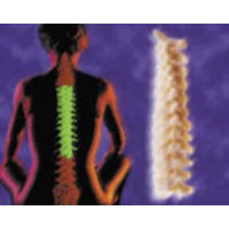 Система VERTEBRIS для грудного отдела